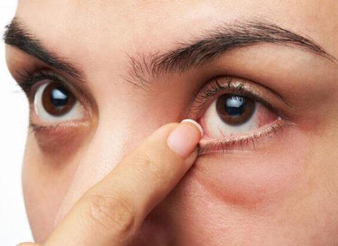 Gözlərdəki bu əlamətlər koronavirusun simptomları ola bilər