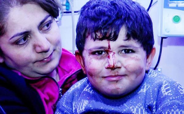 """Erməni terrorunun canlı şahidi Bəxtiyar: """"Evimizə bomba düşəndə qorxmadım, heç kişi də qorxar?"""" – VİDEO"""
